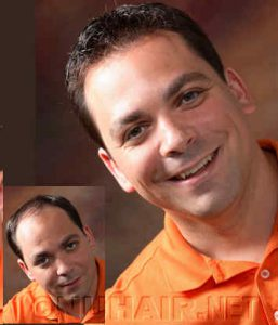 Man Hair Replacement No Surgery Hair Restoration Dallas DFW