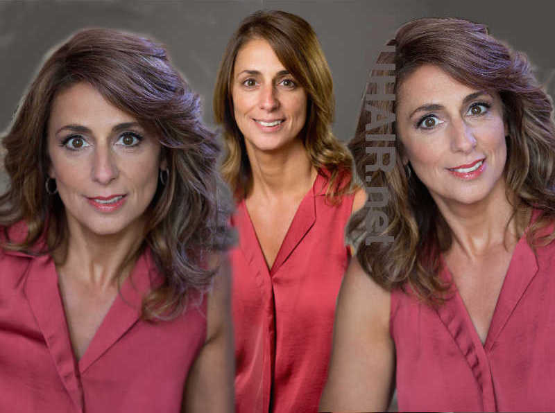 Female Hair Restoration DFW Hair Replacement Specialist