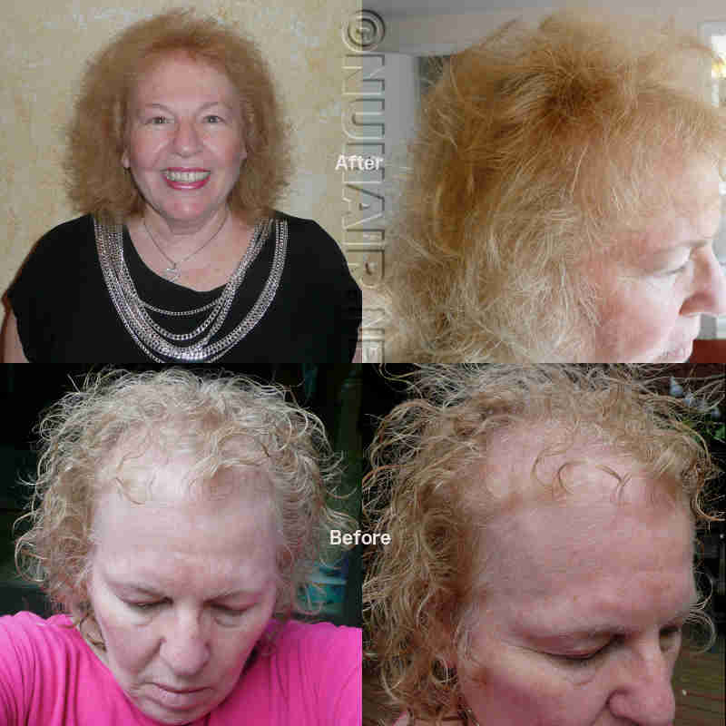 Laser Hair Therapy Treatment Hair Growth Results Dallas DFW TX