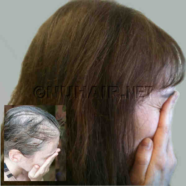 Laser Hair Therapy hair restoration for hair regrowth in Dallas DFW Texas