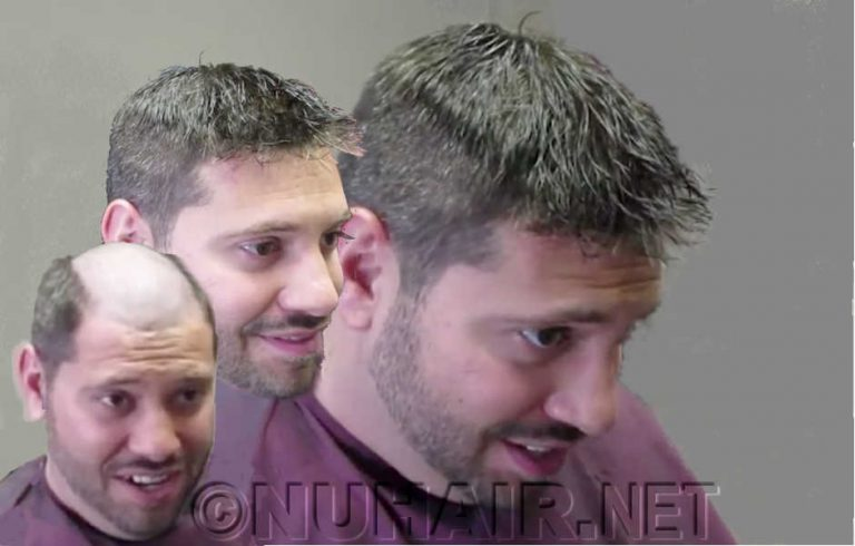 Tino New Men's Hair Replacement Hairstyle for the 2020s Trend